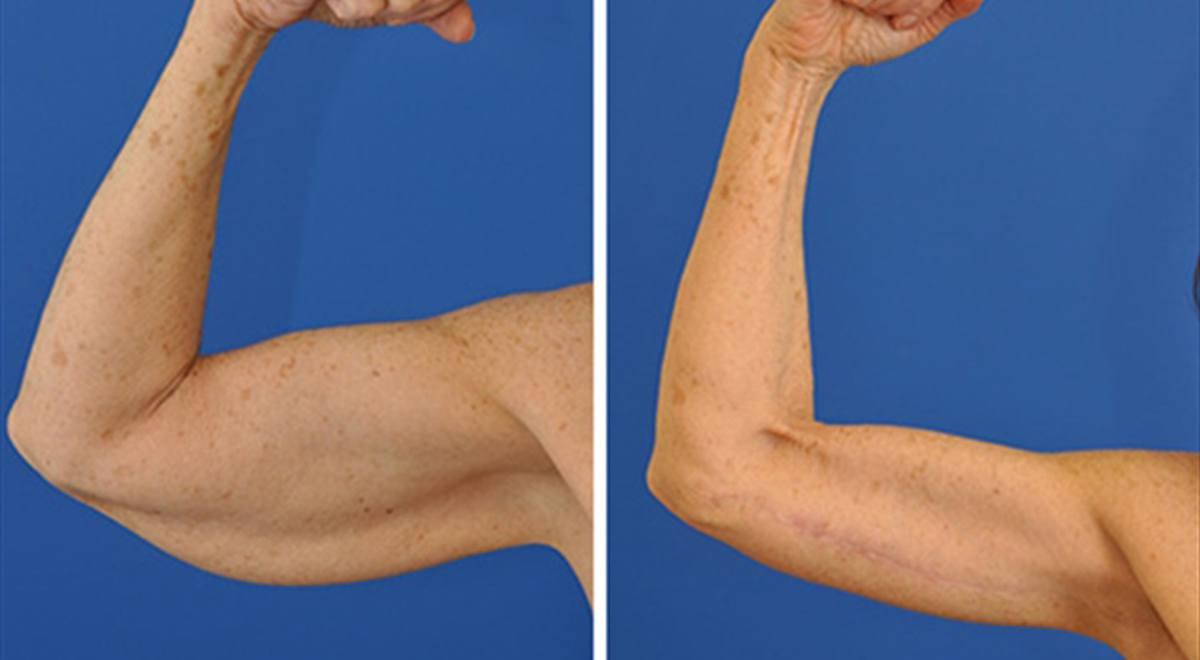 Arm Lift (Brachioplasty)