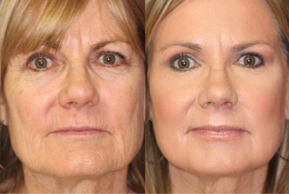 Chemical Peels | Cape Town
