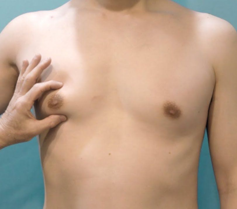 Male Breast Reduction Surgery (Gynaecomastia liposuction) | Cape Town