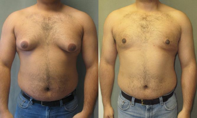 Male Breast Reduction Surgery Gynaecomastia Liposuction Cape Town