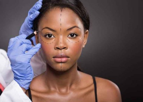 Facelift (Rhytidectomy) | Cape Town