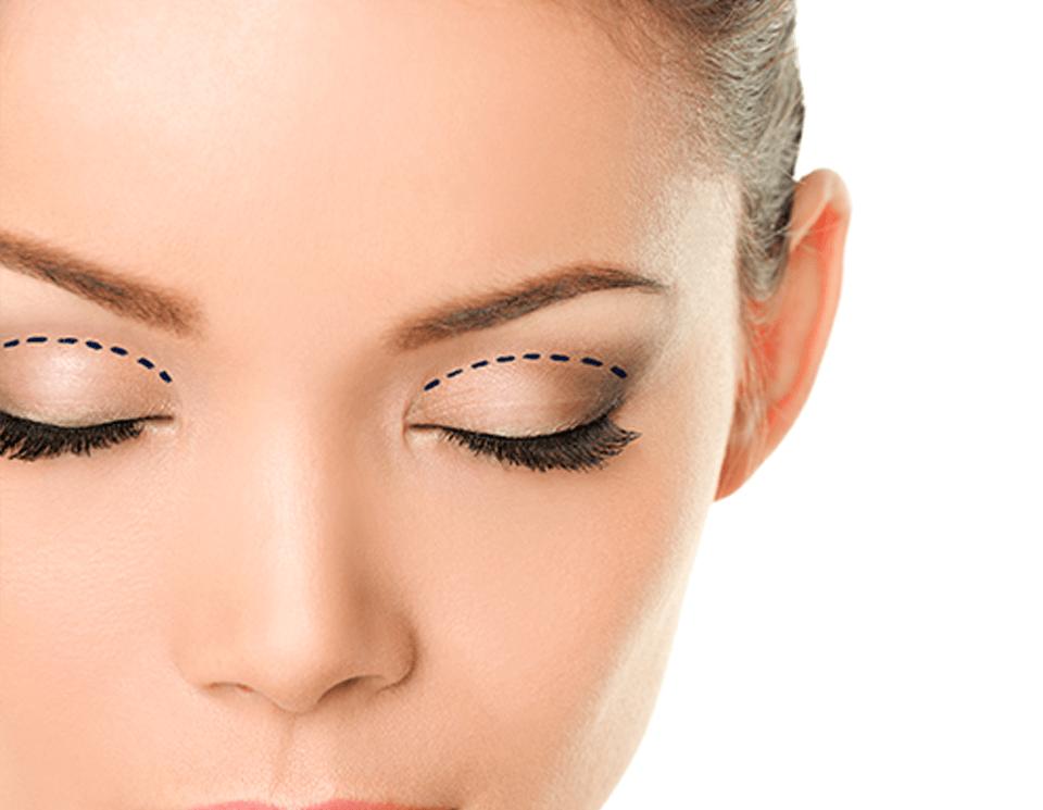 Eyelid Surgery (Blepharoplasty) | Cape Town